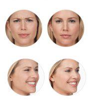 Botox-ba-photos
