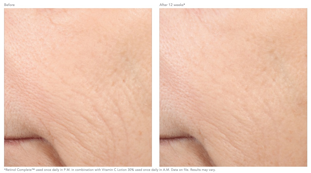 retinol-complete-before-and-after