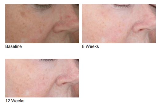Photo Dynamic Therapy Before and After