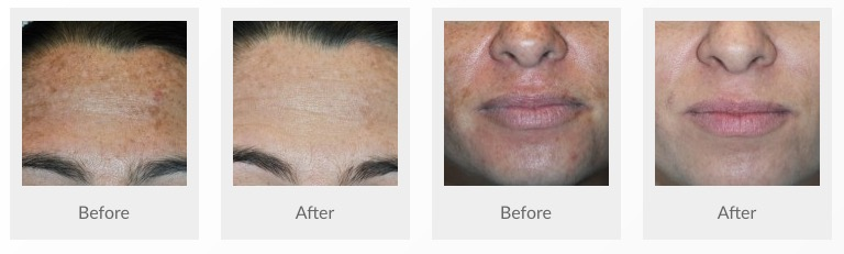 Glycolic Peel Yardley Dermatology