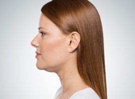 kybella neck treatment by Yardley Dermatology