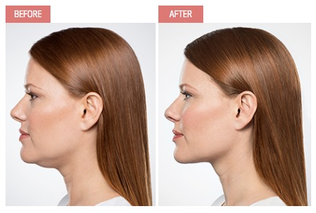 kybella neck treatment by Yardley Dermoatology