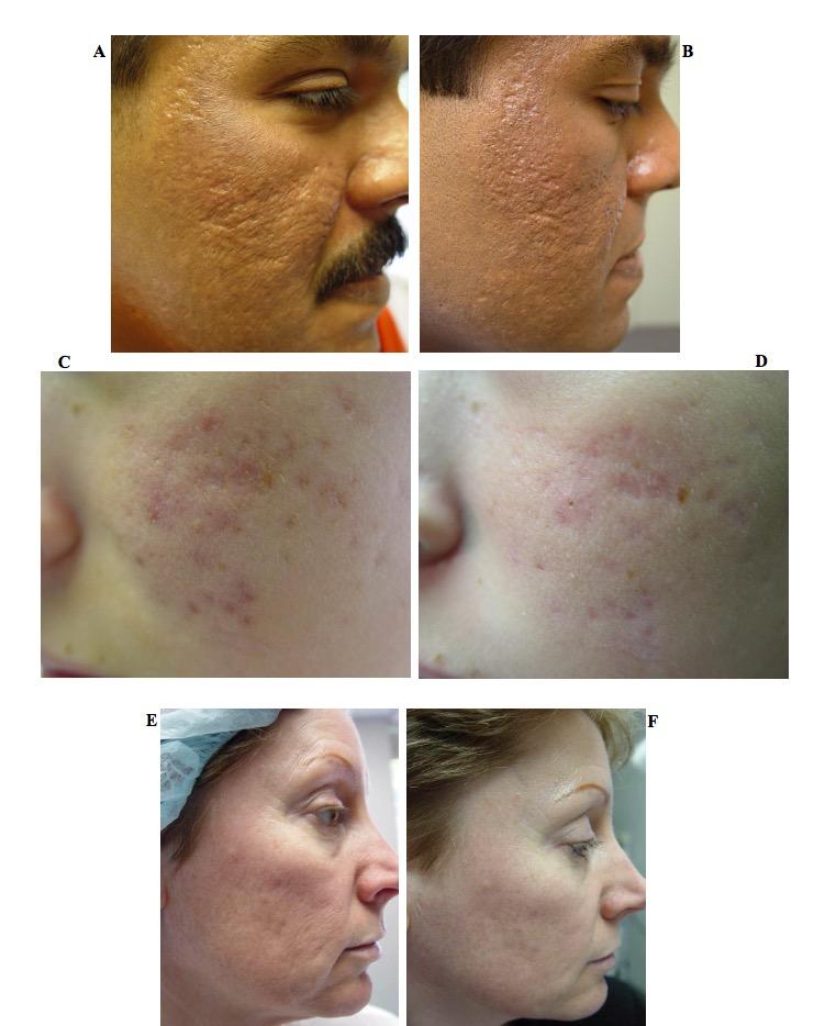 laser-removal-scars