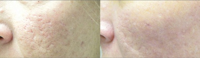 Laser Removal of scars - Yardley Dermatology