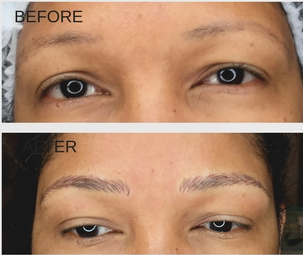 Yardley Dermatology - eyebrow-microblading